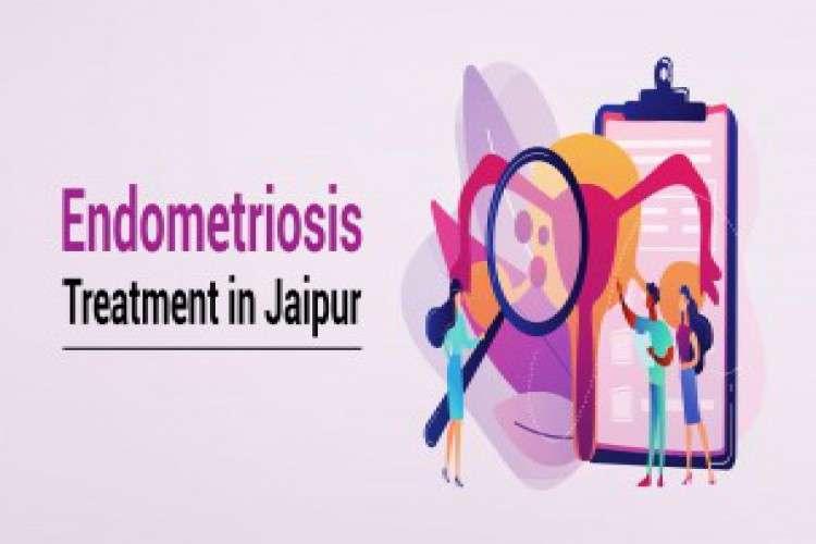 Visit best endometriosis treatment in jaipur